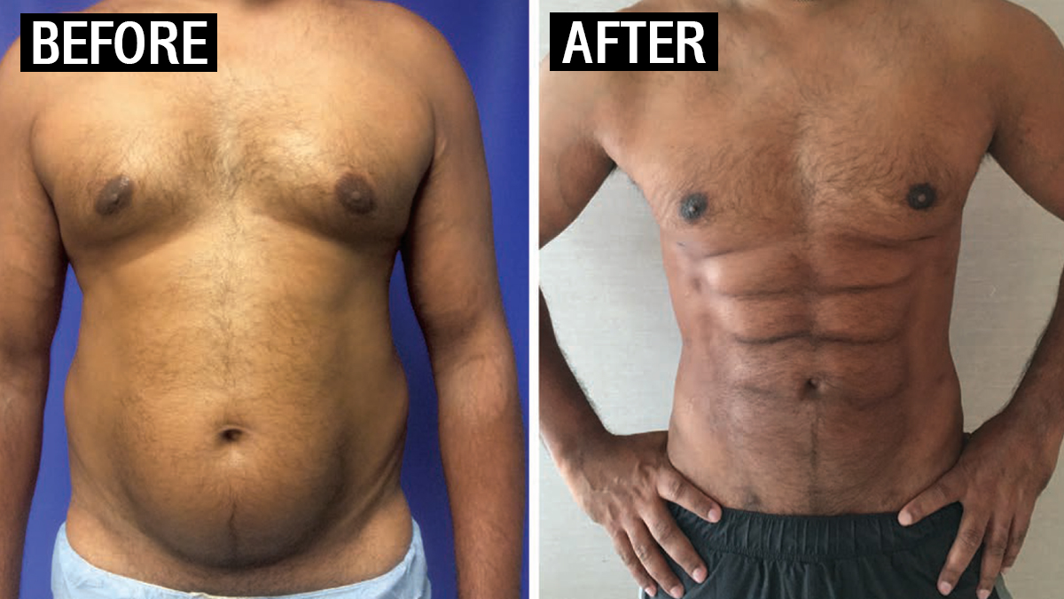 Thai Hospital Now Offers Instant Six Pack Surgery